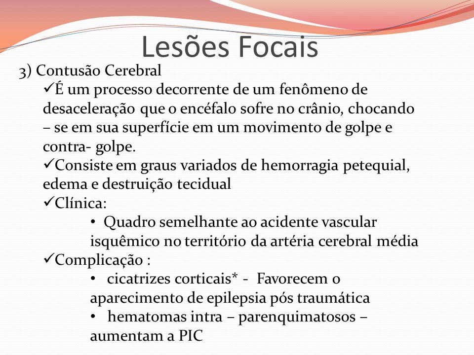 Lesões Focais 3) Contusão Cerebral