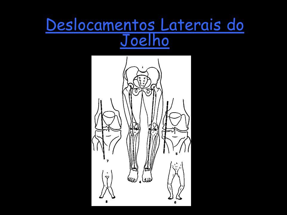 Deslocamentos Laterais do Joelho