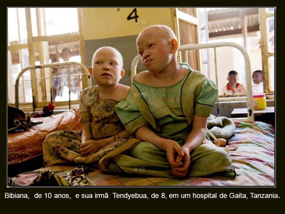Bibiana, de 10 anos, e sua irmã Tendyebua, de 8, em um hospital de Gaita, Tanzania.
