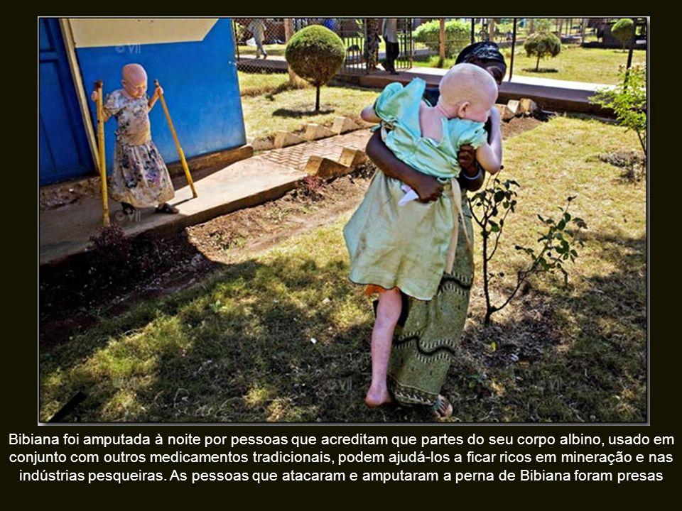 Bibiana foi amputada à noite por pessoas que acreditam que partes do seu corpo albino, usado em conjunto com outros medicamentos tradicionais, podem ajudá-los a ficar ricos em mineração e nas indústrias pesqueiras.