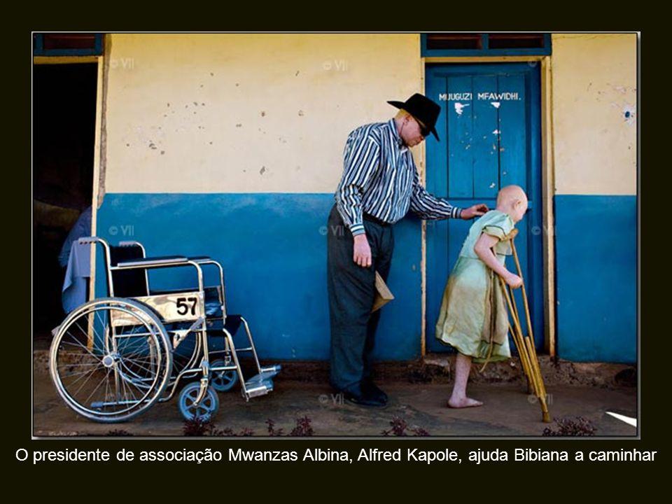 O presidente de associação Mwanzas Albina, Alfred Kapole, ajuda Bibiana a caminhar