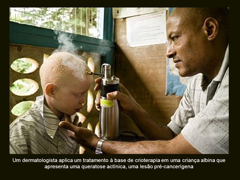Um dermatologista aplica um tratamento à base de crioterapia em uma criança albina que apresenta uma queratose actínica, uma lesão pré-cancerígena