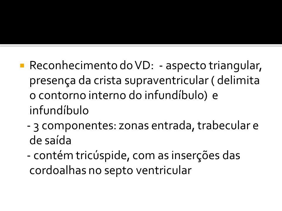 Reconhecimento do VD: - aspecto triangular, presença da crista supraventricular ( delimita o contorno interno do infundíbulo) e infundíbulo