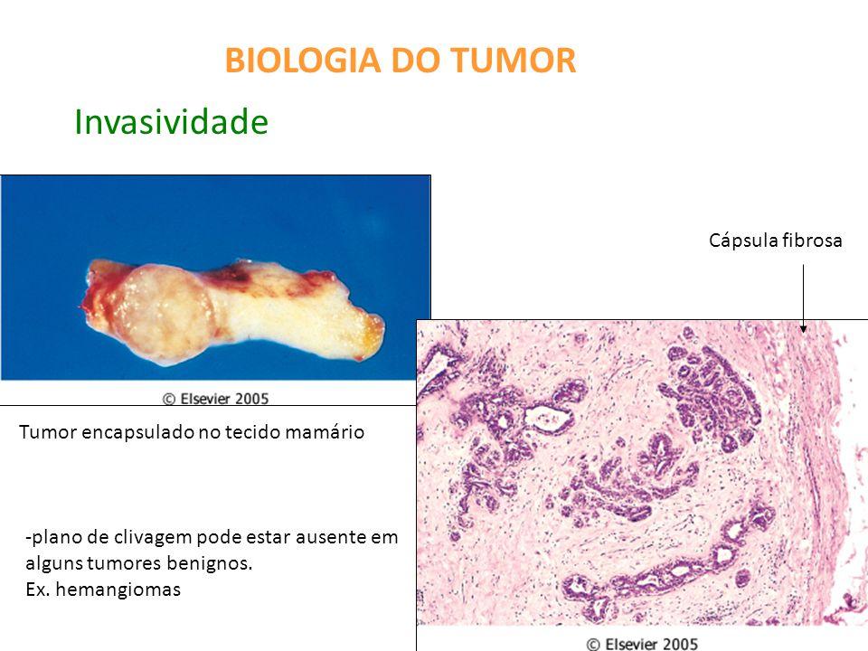 BIOLOGIA DO TUMOR Invasividade Cápsula fibrosa