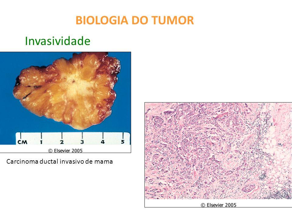 BIOLOGIA DO TUMOR Invasividade Carcinoma ductal invasivo de mama