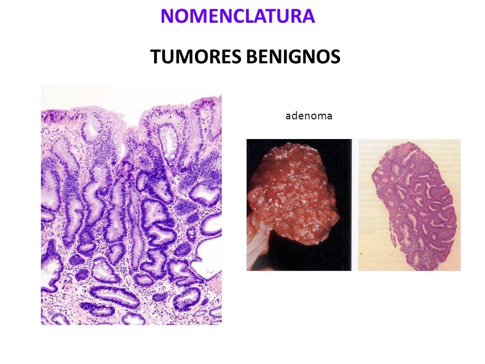 NOMENCLATURA TUMORES BENIGNOS adenoma