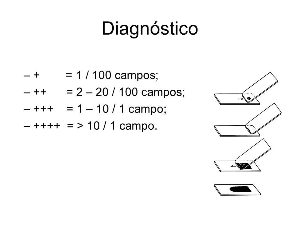 Diagnóstico + = 1 / 100 campos; ++ = 2 – 20 / 100 campos;