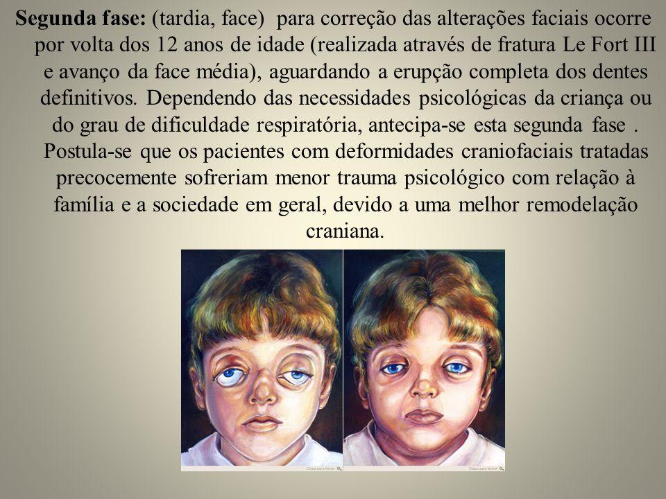 Segunda fase: (tardia, face) para correção das alterações faciais ocorre por volta dos 12 anos de idade (realizada através de fratura Le Fort III e avanço da face média), aguardando a erupção completa dos dentes definitivos.
