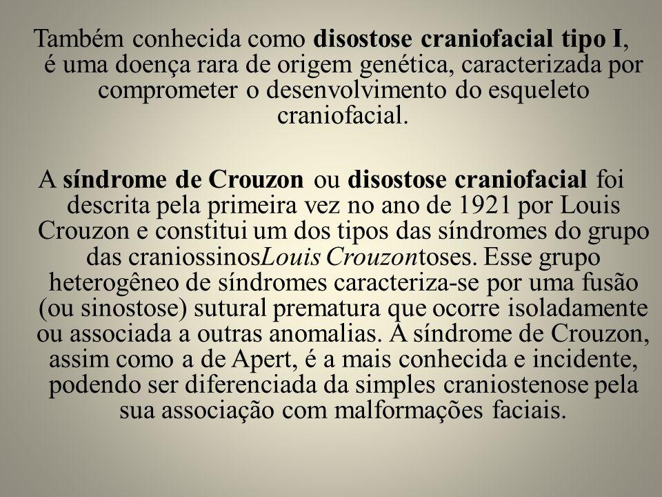 Também conhecida como disostose craniofacial tipo I, é uma doença rara de origem genética, caracterizada por comprometer o desenvolvimento do esqueleto craniofacial.