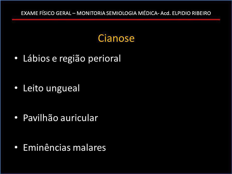 Cianose Lábios e região perioral Leito ungueal Pavilhão auricular