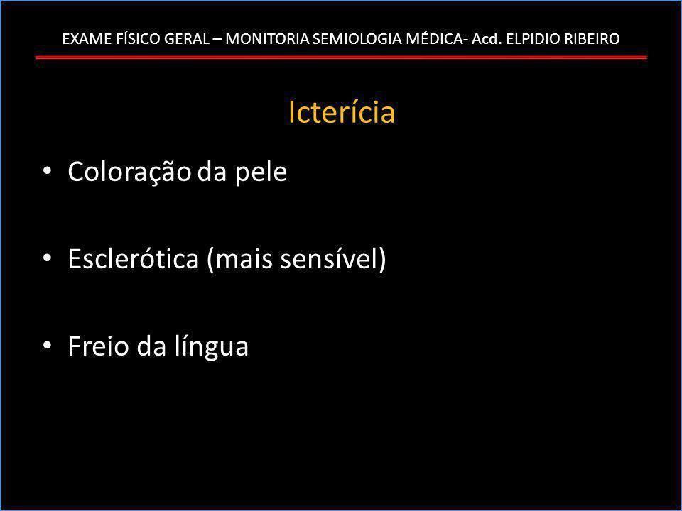 Icterícia Coloração da pele Esclerótica (mais sensível)