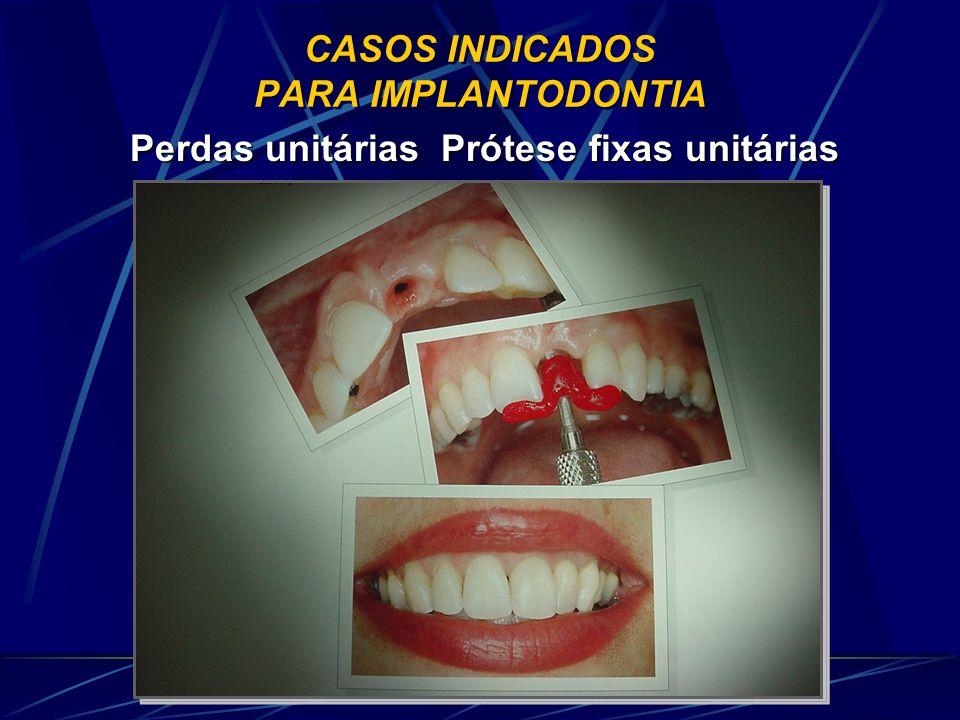 CASOS INDICADOS PARA IMPLANTODONTIA