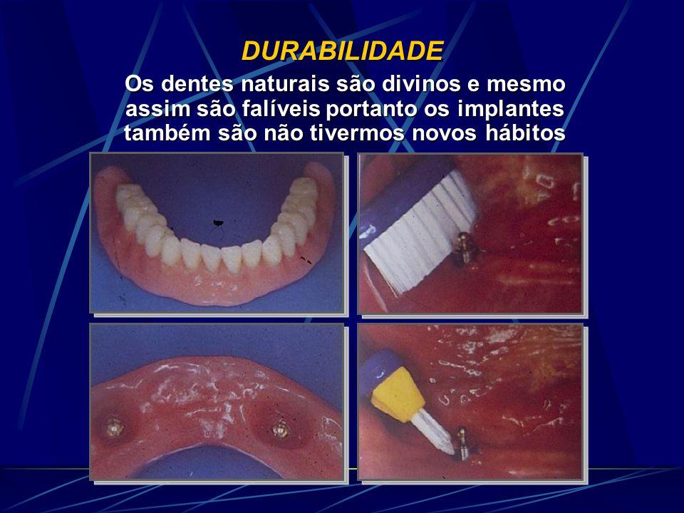 DURABILIDADE Os dentes naturais são divinos e mesmo assim são falíveis portanto os implantes também são não tivermos novos hábitos.