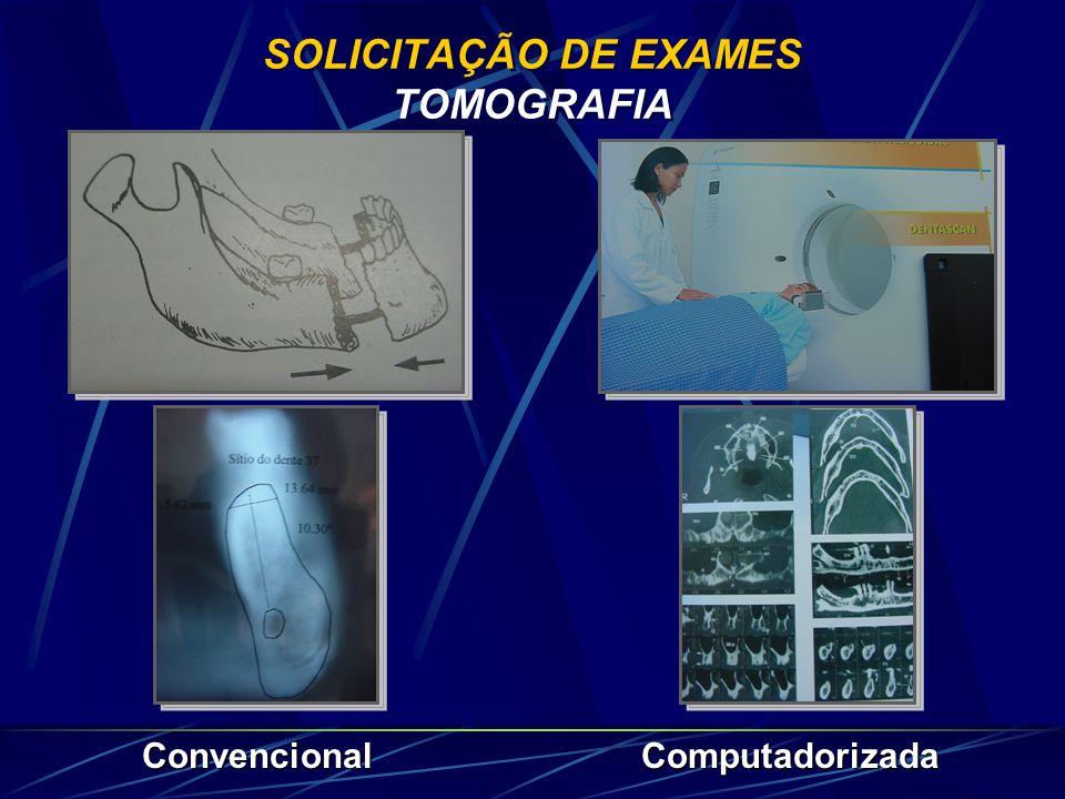 SOLICITAÇÃO DE EXAMES TOMOGRAFIA
