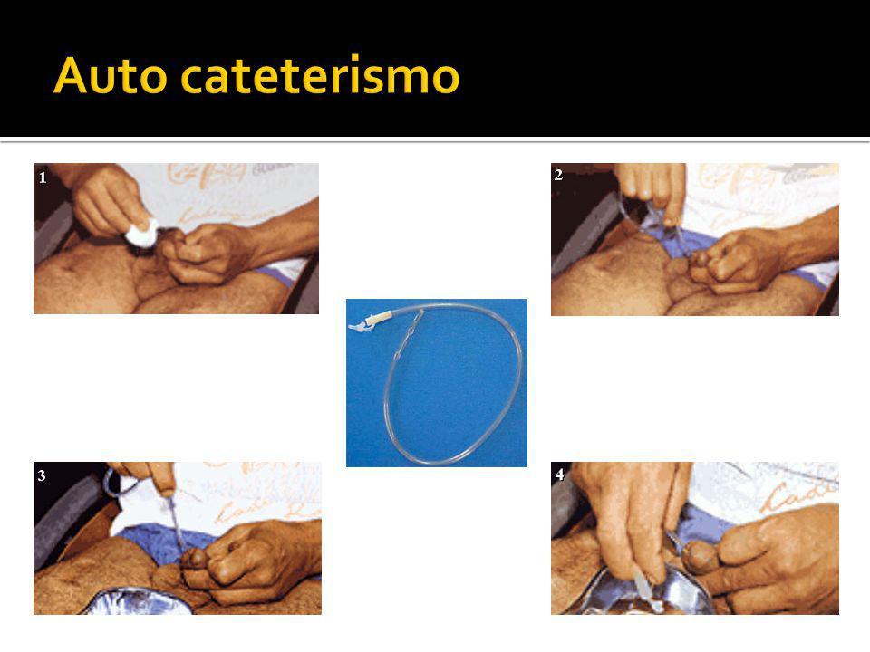 Auto cateterismo