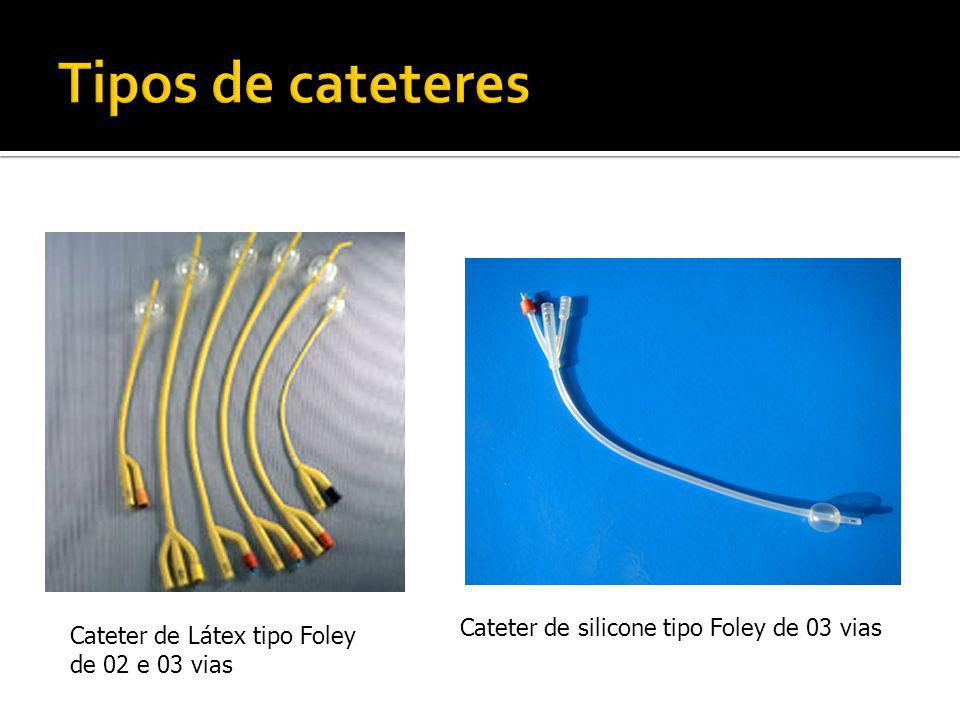 Tipos de cateteres Cateter de silicone tipo Foley de 03 vias