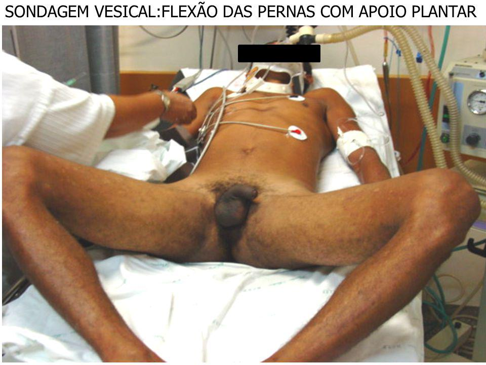 SONDAGEM VESICAL:FLEXÃO DAS PERNAS COM APOIO PLANTAR
