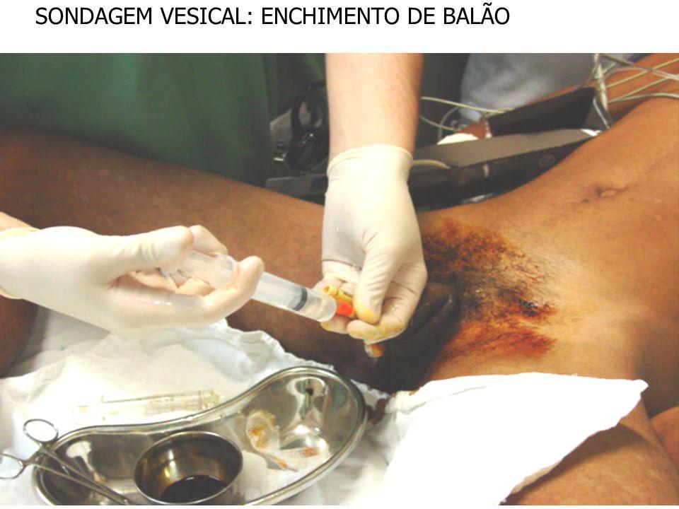 SONDAGEM VESICAL: ENCHIMENTO DE BALÃO