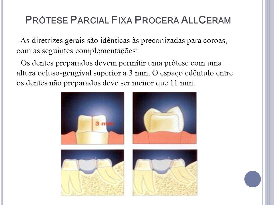 Prótese Parcial Fixa Procera AllCeram