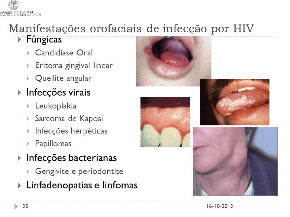 Manifestações orofaciais de infecção por HIV