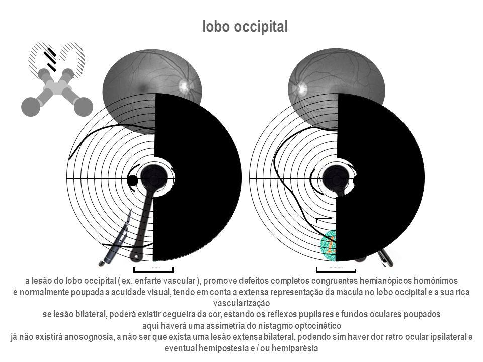 lobo occipital a lesão do lobo occipital ( ex. enfarte vascular ), promove defeitos completos congruentes hemianópicos homónimos.