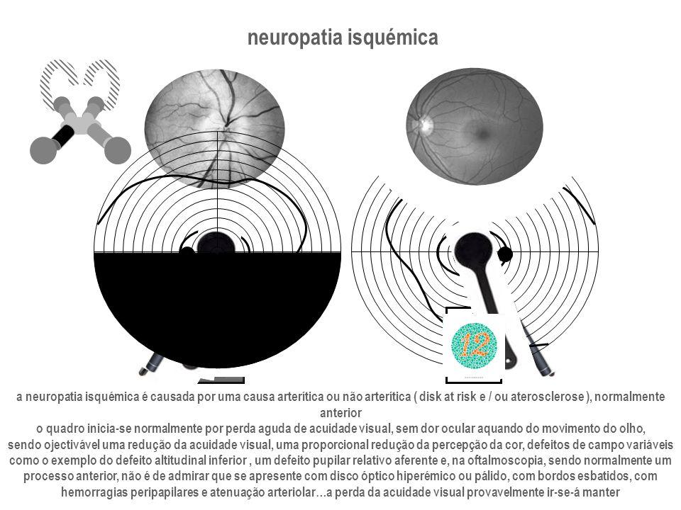 neuropatia isquémica a neuropatia isquémica é causada por uma causa arterítica ou não arterítica ( disk at risk e / ou aterosclerose ), normalmente.