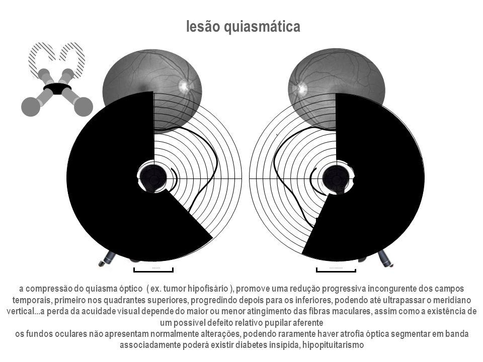 lesão quiasmática a compressão do quiasma óptico ( ex. tumor hipofisário ), promove uma redução progressiva incongurente dos campos.