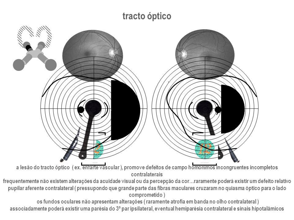 tracto óptico a lesão do tracto óptico ( ex. enfarte vascular ), promove defeitos de campo homónimos incongruentes incompletos.