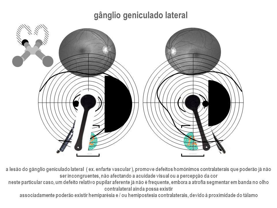 gânglio geniculado lateral contralateral ainda possa existir