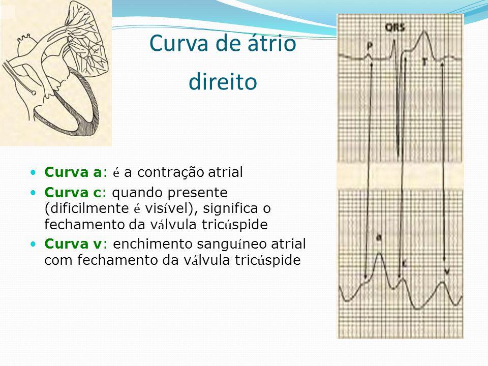 Curva de átrio direito Curva a: é a contração atrial
