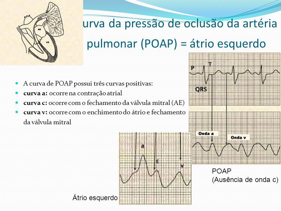 Curva da pressão de oclusão da artéria pulmonar (POAP) = átrio esquerdo