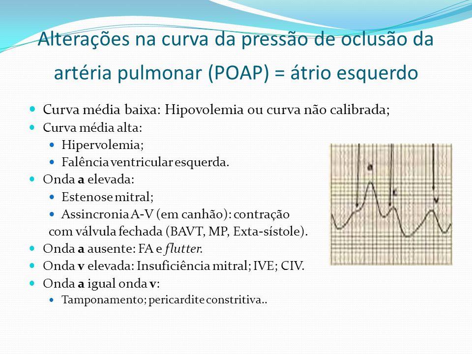 Alterações na curva da pressão de oclusão da artéria pulmonar (POAP) = átrio esquerdo