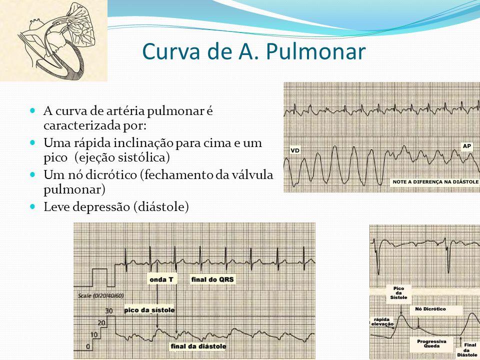 Curva de A. Pulmonar A curva de artéria pulmonar é caracterizada por: