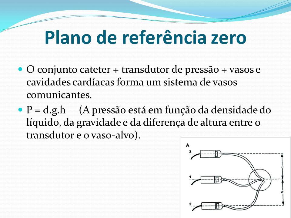 Plano de referência zero