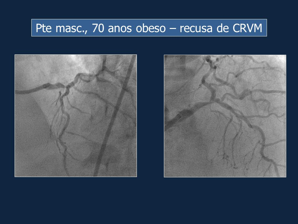 Pte masc., 70 anos obeso – recusa de CRVM