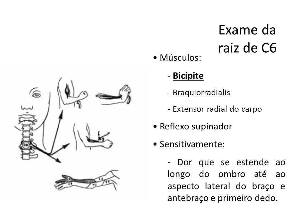 Exame da raiz de C6 Músculos: Bicípite Reflexo supinador