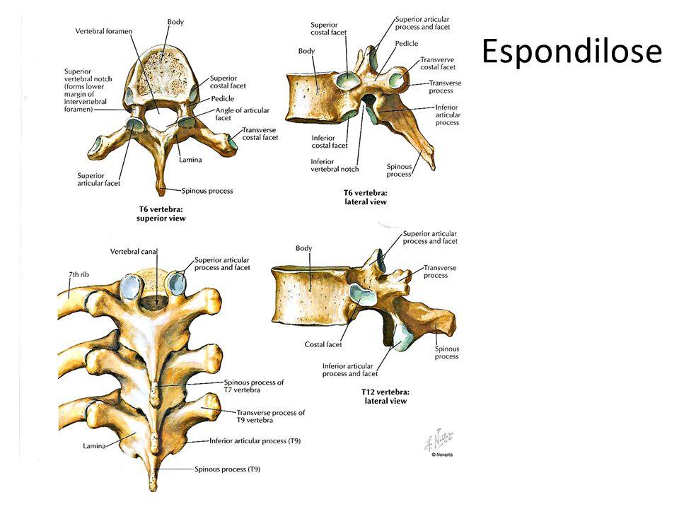 Espondilose