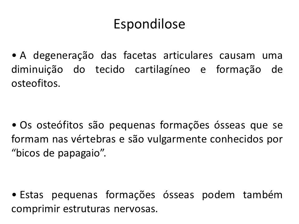 Espondilose A degeneração das facetas articulares causam uma diminuição do tecido cartilagíneo e formação de osteofitos.