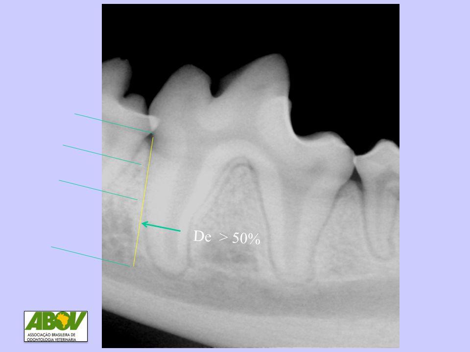 DP4 Perda óssea > 50% De > 50%