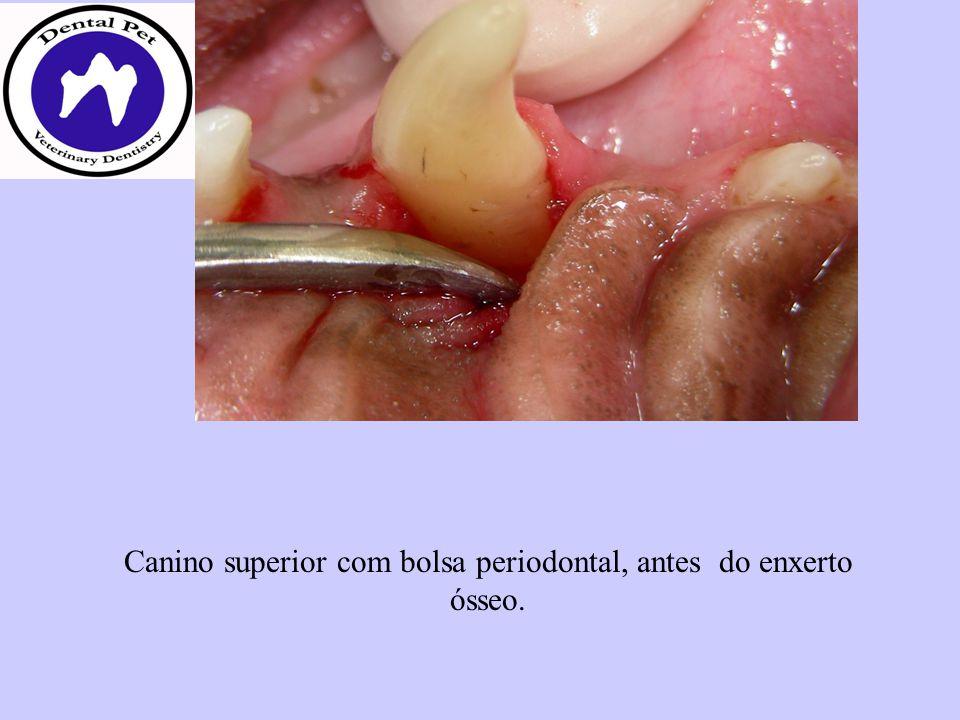 Canino superior com bolsa periodontal, antes do enxerto ósseo.
