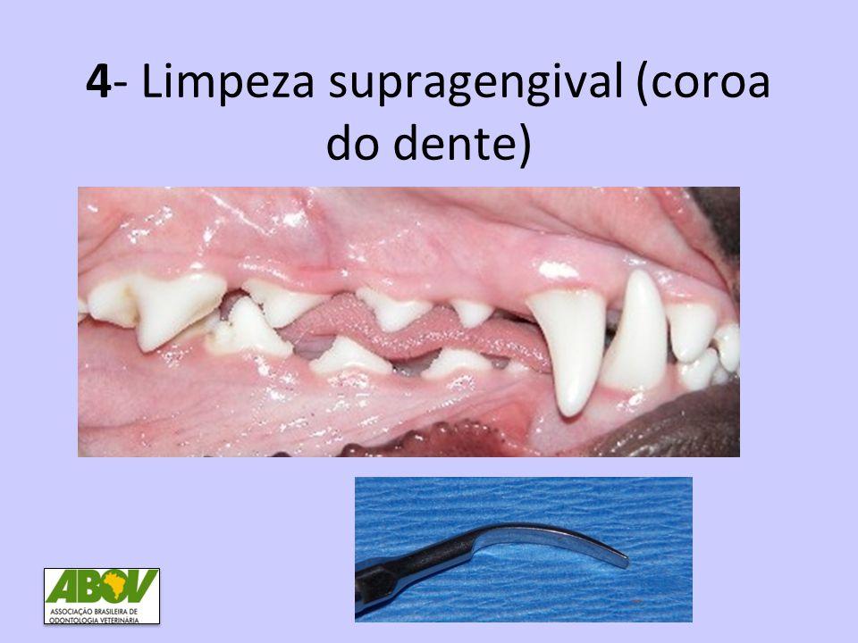 4- Limpeza supragengival (coroa do dente)