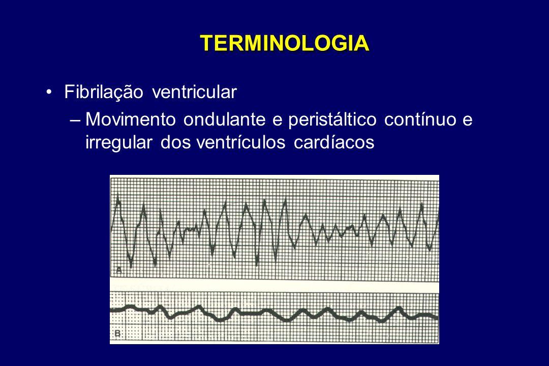 TERMINOLOGIA Fibrilação ventricular