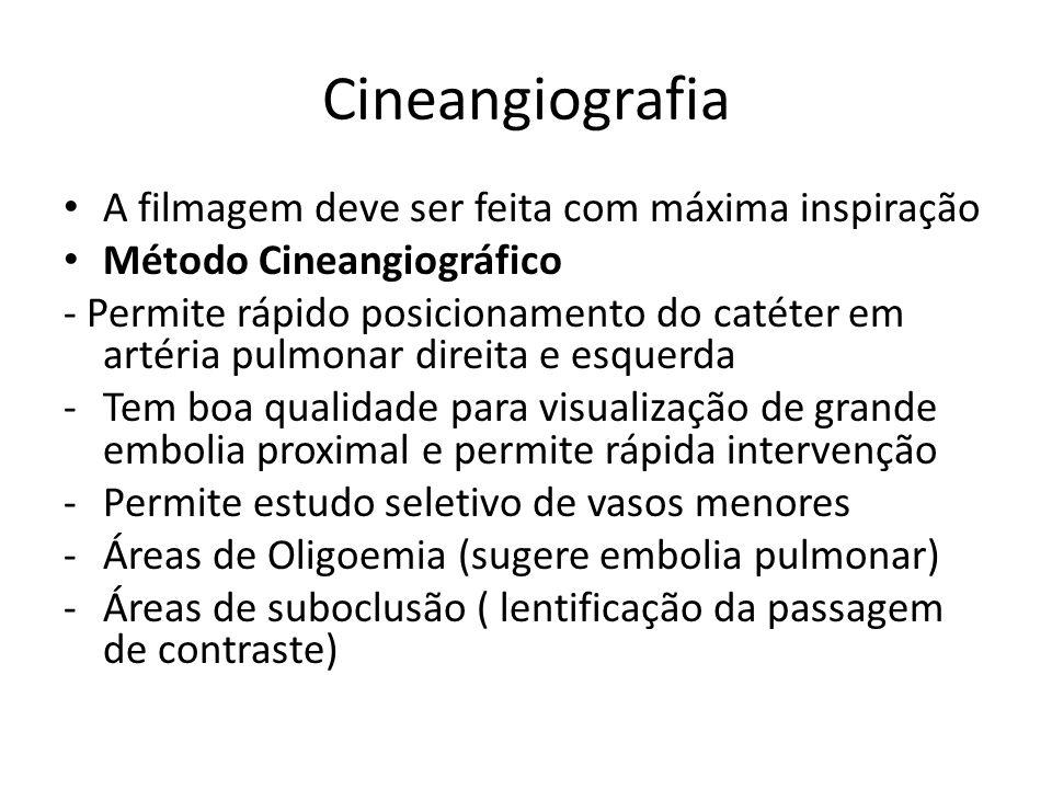 Cineangiografia A filmagem deve ser feita com máxima inspiração