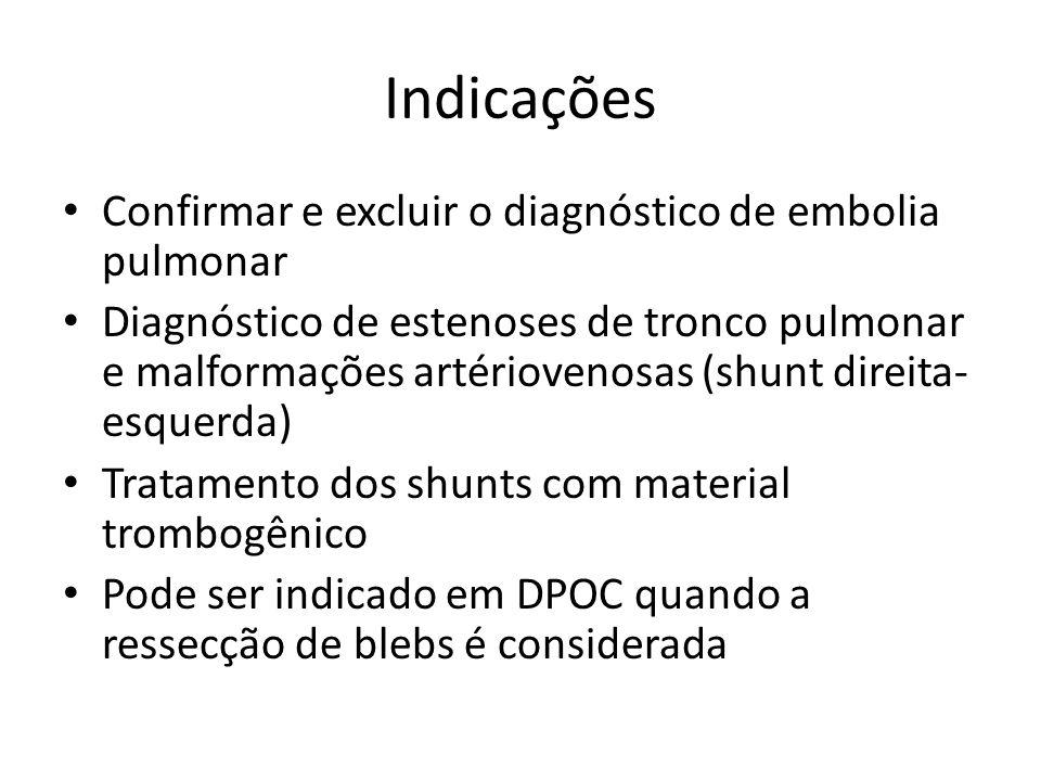 Indicações Confirmar e excluir o diagnóstico de embolia pulmonar