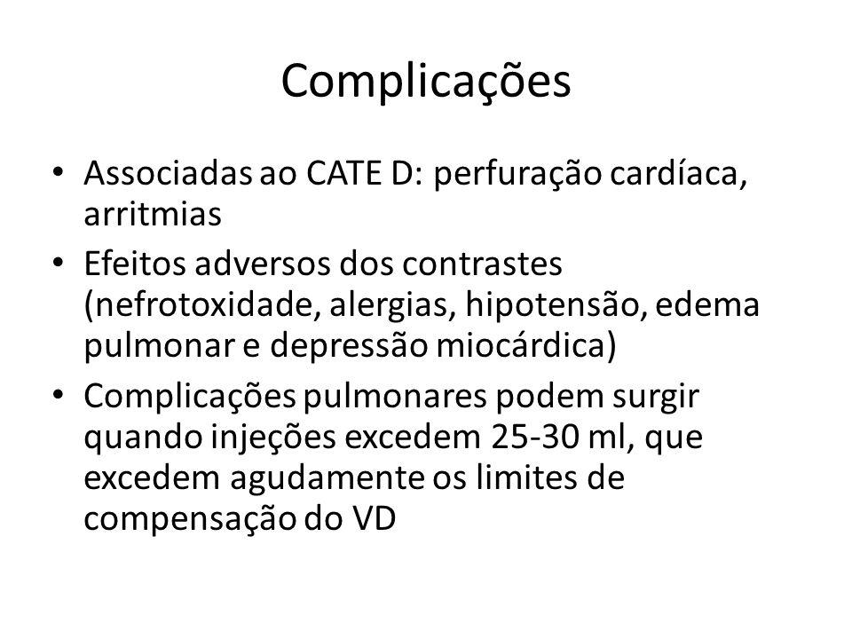 Complicações Associadas ao CATE D: perfuração cardíaca, arritmias