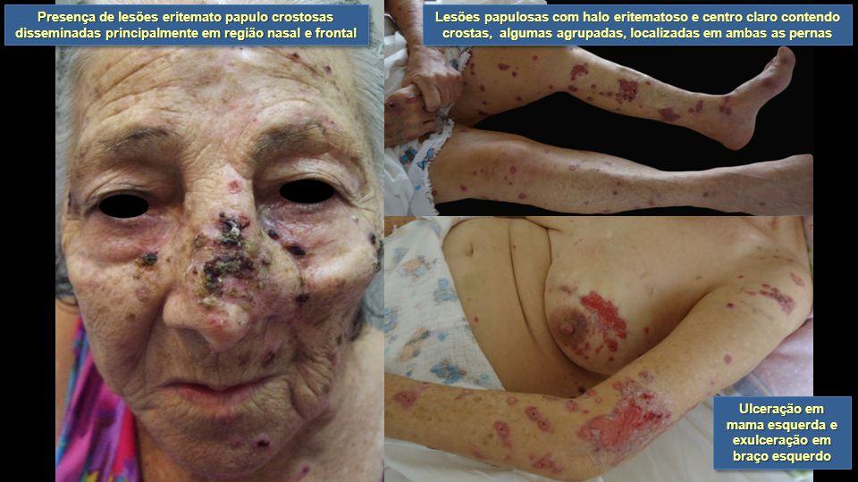 Ulceração em mama esquerda e exulceração em braço esquerdo