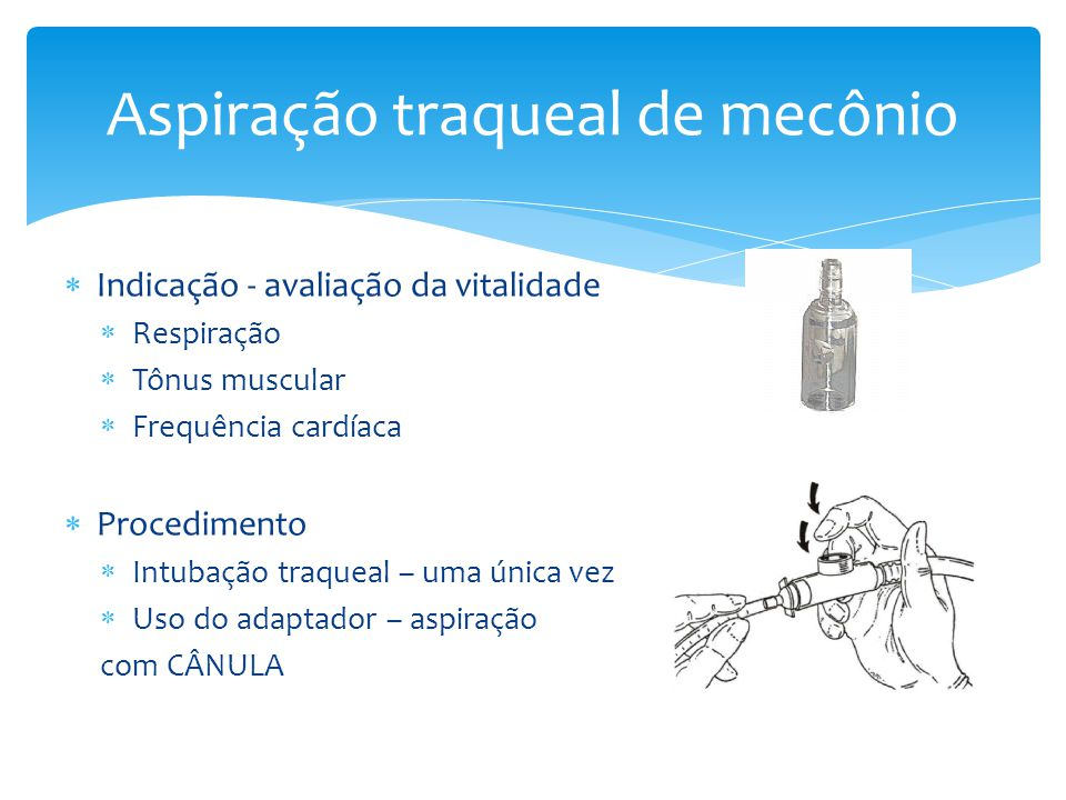 Aspiração traqueal de mecônio