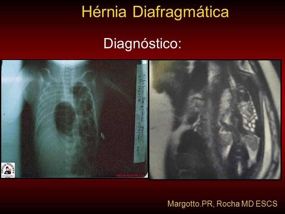 Hérnia Diafragmática Diagnóstico: Margotto.PR, Rocha MD ESCS