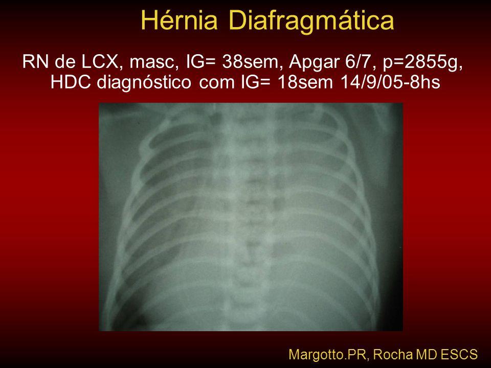 Hérnia Diafragmática RN de LCX, masc, IG= 38sem, Apgar 6/7, p=2855g,