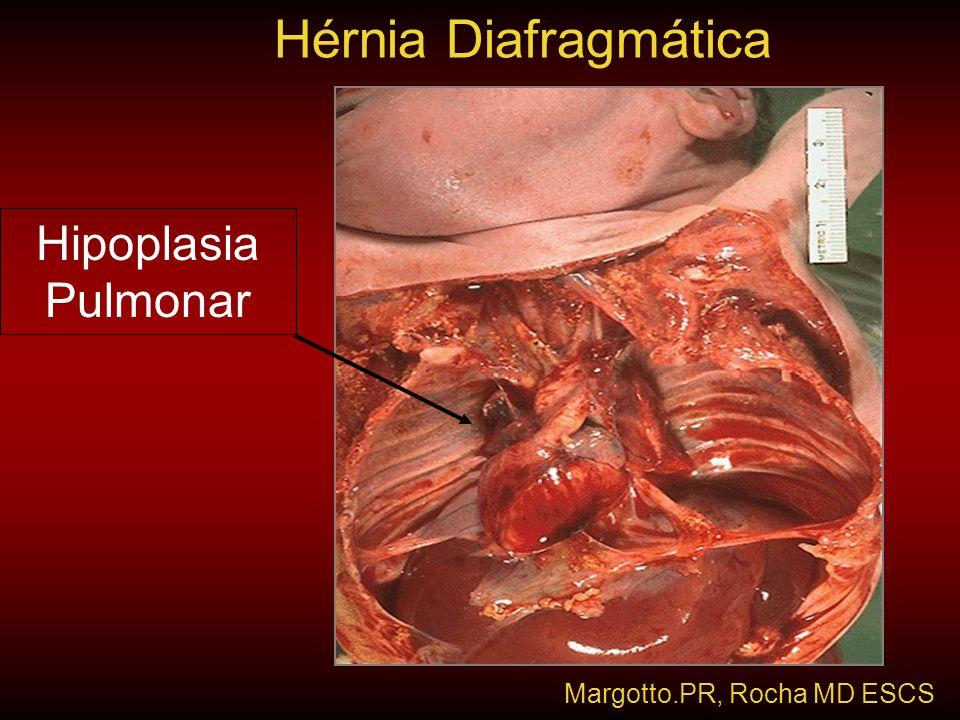 Hérnia Diafragmática Hipoplasia Pulmonar Margotto.PR, Rocha MD ESCS